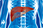NAFLD, GLUT8, blocking delivery of fructose to liver