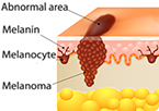 p15 tumor suppressor protein in skin moles prevents progression to melanoma