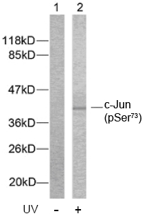 Rabbit Anti c-Jun (Phospho-Ser73) (polyclonal) Western blot