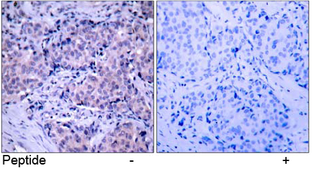 Rabbit Anti PDK1 (Ab-241) (polyclonal) immunohistochemical analysis