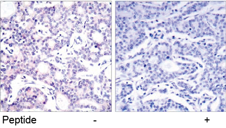 Rabbit Anti NF-κB p105/p50 (Ab-893)(polyclonal) Immunohistochemical analysis