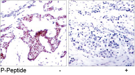 Rabbit Anti NF-κB p65 (Phospho-Ser276) (polyclonal) Immunohistochemical analysis
