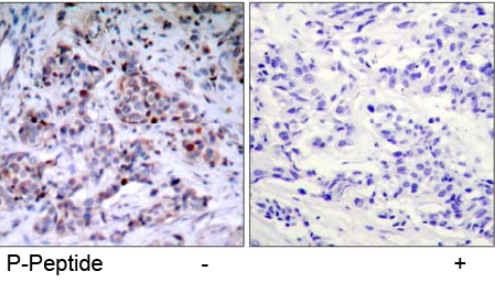 Rabbit Anti NF-κB p65 (Phospho-Thr435) (polyclonal) Immunohistochemical analysis