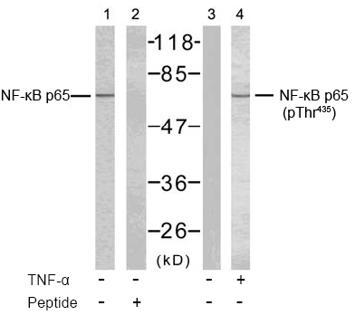 Rabbit Anti NF-κB p65 (Phospho-Thr435) (polyclonal) Western Blot analysis