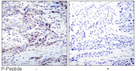 Rabbit Anti NF-κB p100/p52 (Phospho-Ser869) (polyclonal) Immunohistochemical analysis