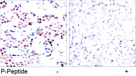 Rabbit Anti c-Jun (Phospho-Thr91) (polyclonal) Immunohistochemical analysis