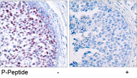 Rabbit Anti c-Jun (Phospho-Thr239) (polyclonal) Immunohistochemical analysis