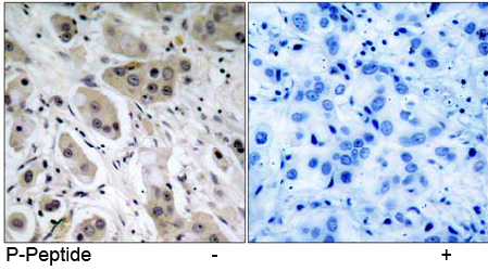 Rabbit Anti Akt (Phospho-Ser473) (polyclonal) Immunohistochemical analysis
