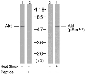 Rabbit Anti Akt (Phospho-Ser473) (polyclonal) Western Blot analysis