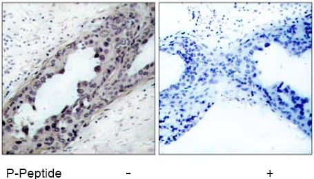 Rabbit Anti PTEN (Phospho-Ser380, Thr382, 383) (polyclonal) Immunohistochemical analysis
