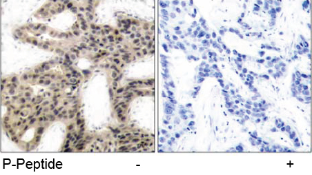 Rabbit Anti 4E-BP1 (Phospho-Thr45) (polyclonal) Immunohistochemical analysis