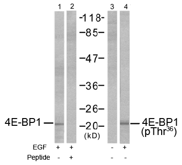 Rabbit Anti 4E-BP1 (Phospho-Thr36) (polyclonal) Western Blot analysis