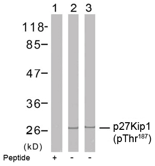 Rabbit Anti p27Kip1 (Phospho-Thr187) (polyclonal) Western Blot analysis