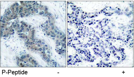 Rabbit Anti JAK2 (Phospho-Tyr1007) (polyclonal) Immunohistochemical analysis