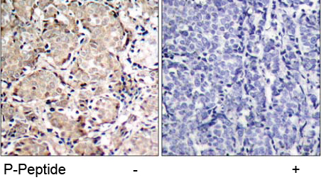 Rabbit Anti FKHR (Phospho-Ser319) (polyclonal) Immunohistochemical analysis