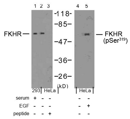 Rabbit Anti FKHR (Phospho-Ser319) (polyclonal) Western blot analysis
