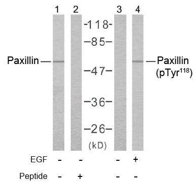 Rabbit Anti Paxillin (Phospho-Tyr118) (polyclonal) Western blot analysis