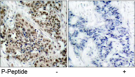 Rabbit Anti FKHR (Phospho-Ser256) (polyclonal) Immunohistochemical analysis