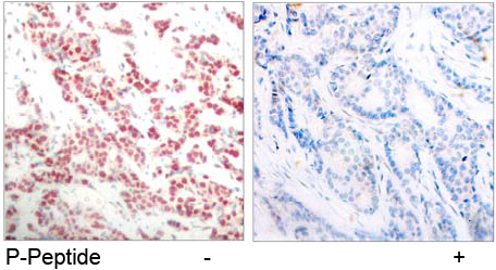 Immunohistochemical analysis using Anti NF-kappaB p100/p52 Phospho-Ser<sup>865</sup>