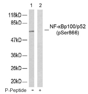 Western blot analysis using Anti NF-kappaB p100/p52 Phospho-Ser<sup>865</sup>