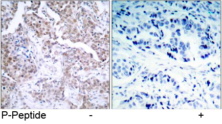 Immunohistochemical analysis using anti p53 Phospho-Ser 15