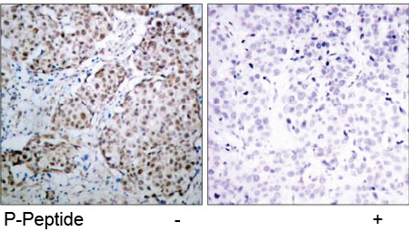 Immunohistochemical analysis using anti p53 Phospho-Ser 315