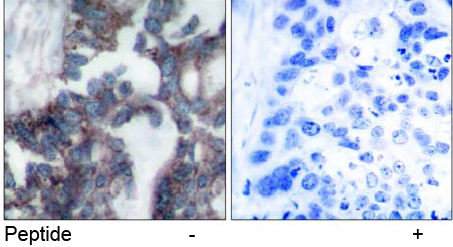 Immunohistochemical analysis using anti p70 S6 Kinase Ab-424