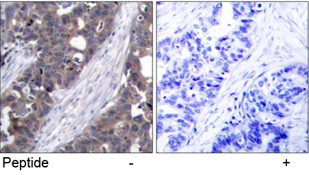 Immunohistochemical analysis using anti p70 S6 Kinase (Ab-411)