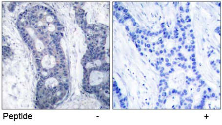 Immunohistochemical analysis using anti elF4E (Ab-209)