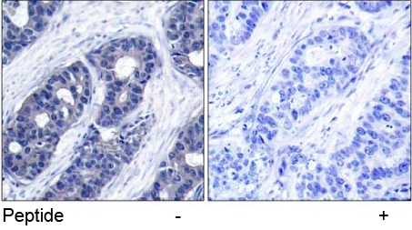 Immunohistochemical analysis using anti IRS-1 (Ab-636)