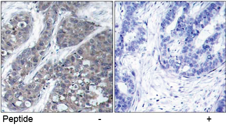 Immunohistochemical analysis using anti Pyk2 (Ab-402)