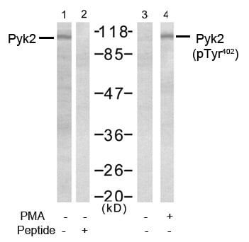 Western blot analysis using anti Pyk2 (Ab-402)