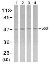 Western blot analysis using anti p53 (Ab-315)