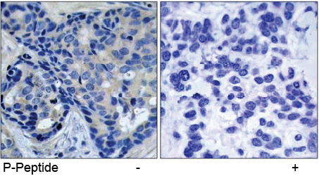 Immunohistochemical analysis using Rabbit Anti Pyk2 (Phospho-Tyr402)