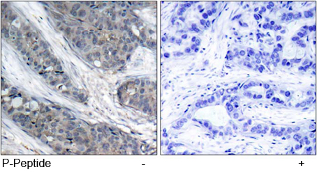 Immunohistochemical analysis using Rabbit Anti IRS-1 (Phospho-Ser307)